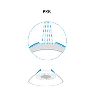 Icona PRK - Chirurgia Refrattiva Trattamenti laser correzione difetti visivi Vista Vision