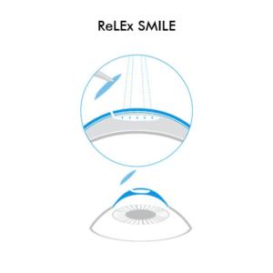 Icona ReLEx SMILE - Chirurgia Refrattiva Trattamenti laser correzione difetti visivi Vista Vision