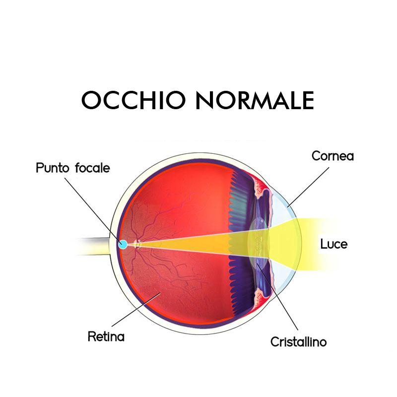 Infografica astigmatismo difetti visivi Vista Vision
