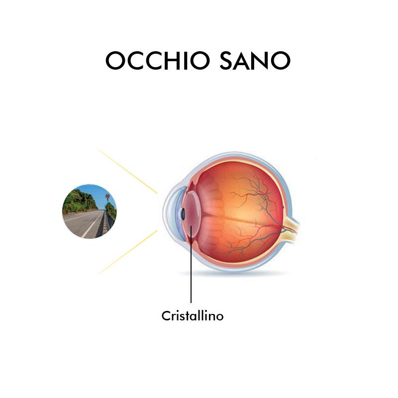 info grafica cataratta Vista Vision
