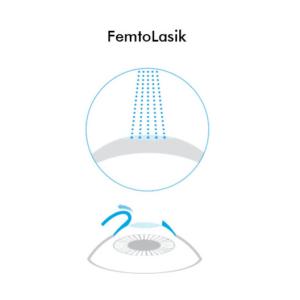 Icona FemtoLasik - Chirurgia Refrattiva Trattamenti laser correzione difetti visivi Vista Vision