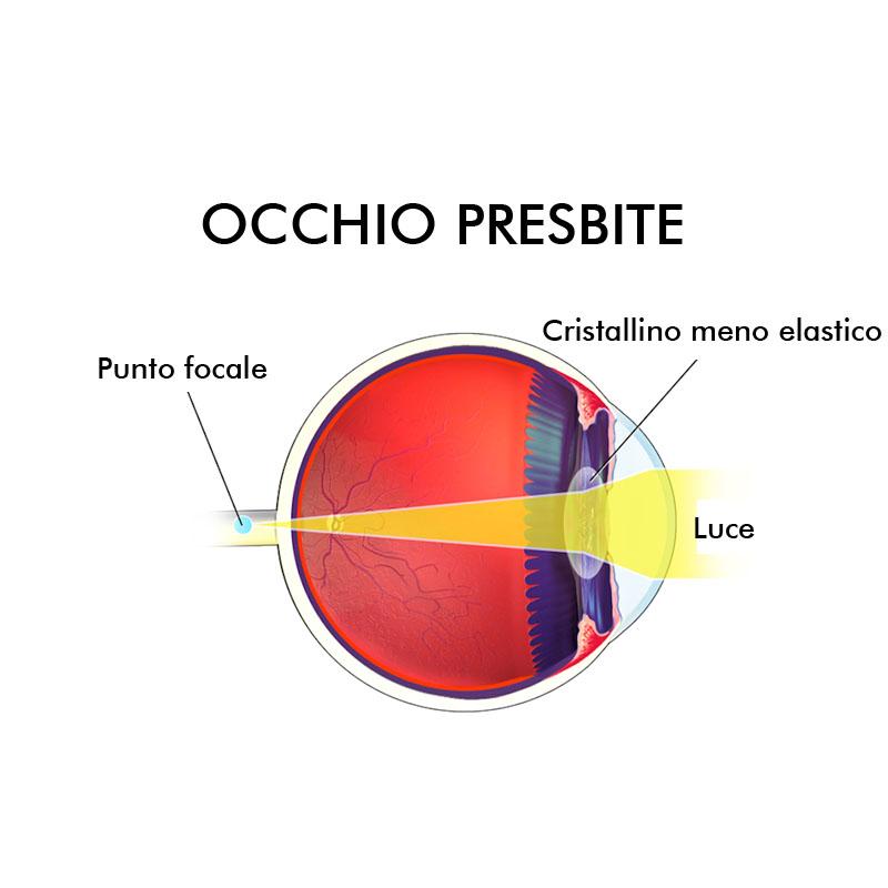 Infografica presbiopia difetti visivi Vista Vision